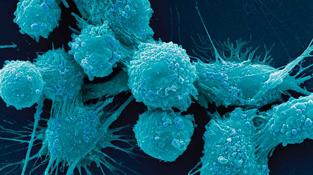 Cancer-Cells-12.jpg
