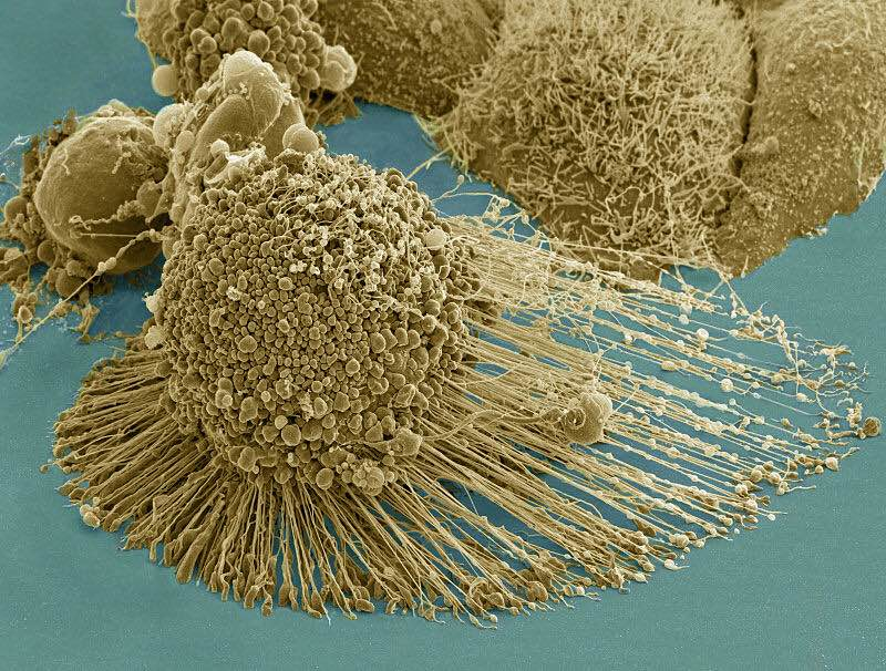 HeLa cell