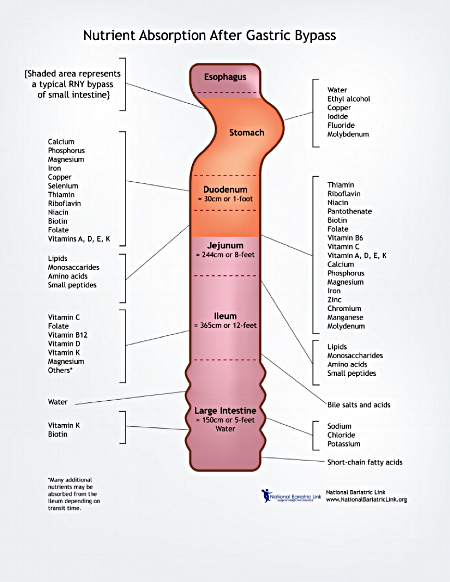 Figure 1. Nutrient absorption (National Bariatric Link, 2018)