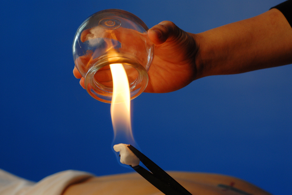 Fire Cupping - The inside of glass cups are lit with fire to create a vacuum.  The cups are placed on various areas of the body to promote increased circulation and movement of qi, providing a variety of healing benefits.