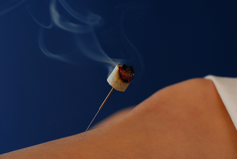 Moxibustion. - Moxibustion is the burning of a specific aged plant over acupuncture points.  It can be used in conjunction with acupuncture or completely separately.