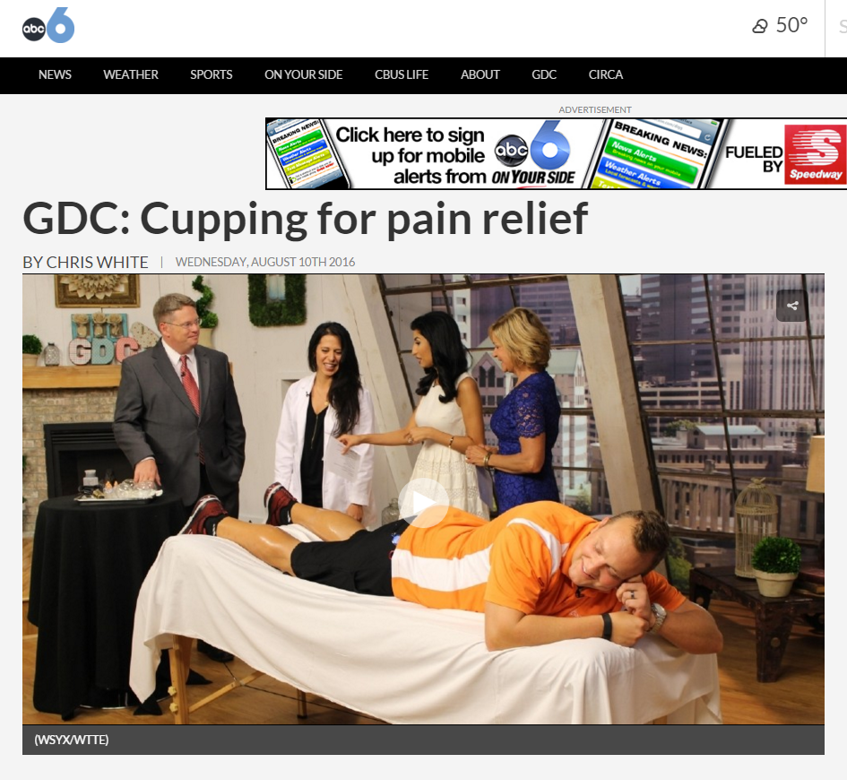 Watch the official Good Day Columbus segment on Acupuncture and Cupping here