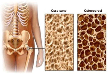 Osso sano e osso con osteoporosi