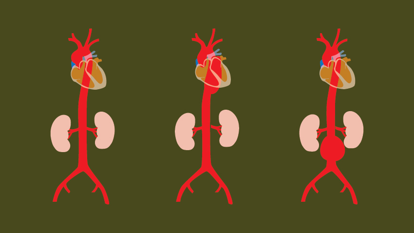Enlarged Aorta Risks and Symptoms: What to Know