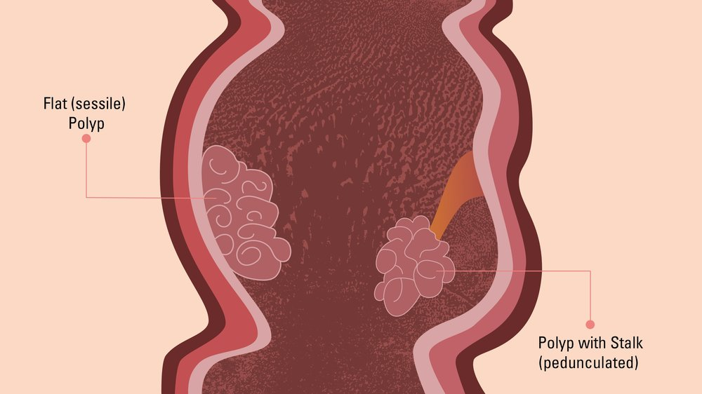 A Colon Polyp Primer: Know the Types and Your Risk Factors