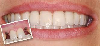 Beautiful new teeth in one day