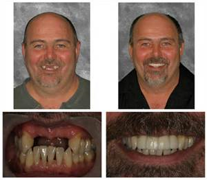 No Job is Too Tough For the Dental Implant Experts