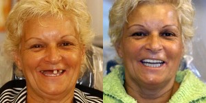 The Best Dental Implants in San Diego
