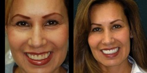 Dental Implants from the experts!