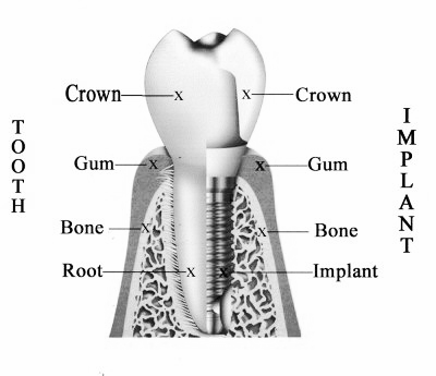A dental implant works by fusing the crown and tooth to the root and base of the tooth. The Dental Implant Experts are the best at Dental Implants in San Diego.