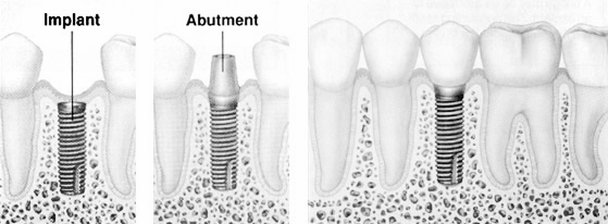 Town Center Dentistry in San Diego offers dental implants for those who have missing or damaged teeth. Come to our Rancho Bernardo offices to meet with the Dental Implant Experts