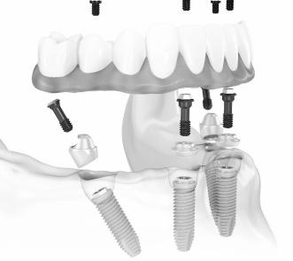 The Dental Implant Experts in Rancho Bernardo offer Hybrid4 permanent dentures. We have the best San Diego Hybrid4 dental implants.