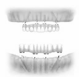 The Dental Implant Experts in San Diego have All-On-Four permanent dentures. If you need a full arc of teeth come to the Dental Implant Experts in Rancho Bernardo.