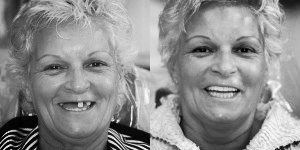 The Dental Implant Experts in Rancho Bernardo offer the best dental implants in San Diego. See the before and after pictures of dental implant procedures.