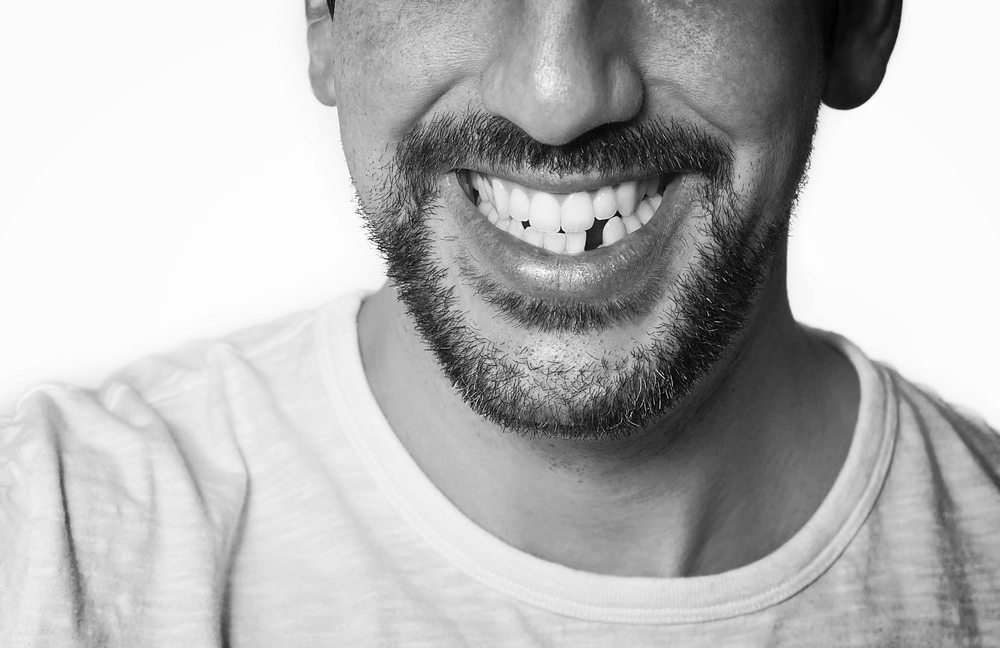 The Dental Implant Experts in San Diego break dow the 8 top causes of tooth loss in adults in San Diego. The Dental Implant experts can help replace missing teeth with the dental implant procedure.