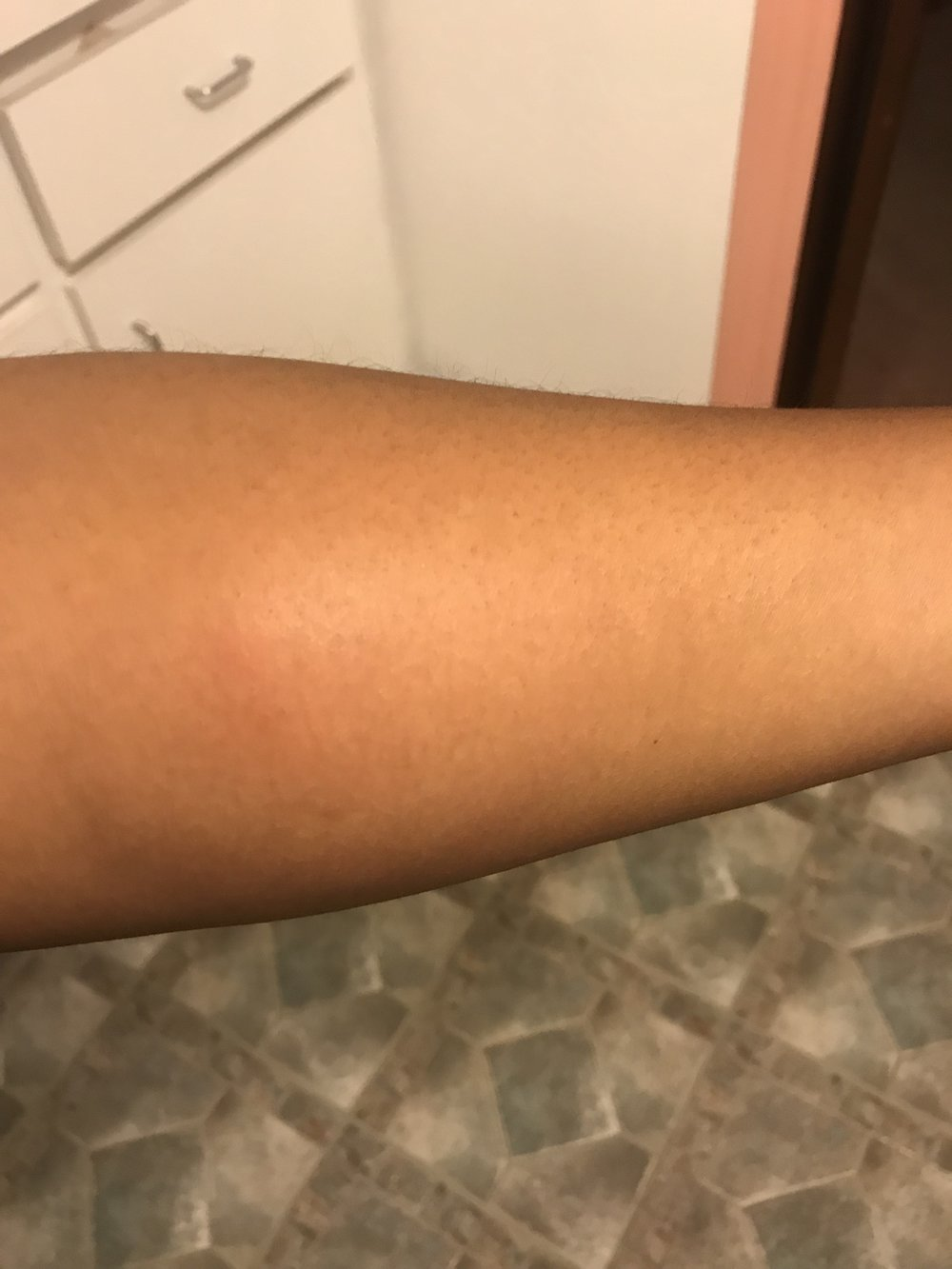 Result from contact with bed bug(s)