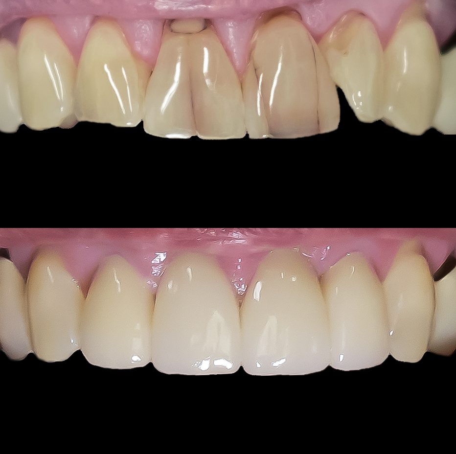 All ceramic crowns, no metal is used in this restoration