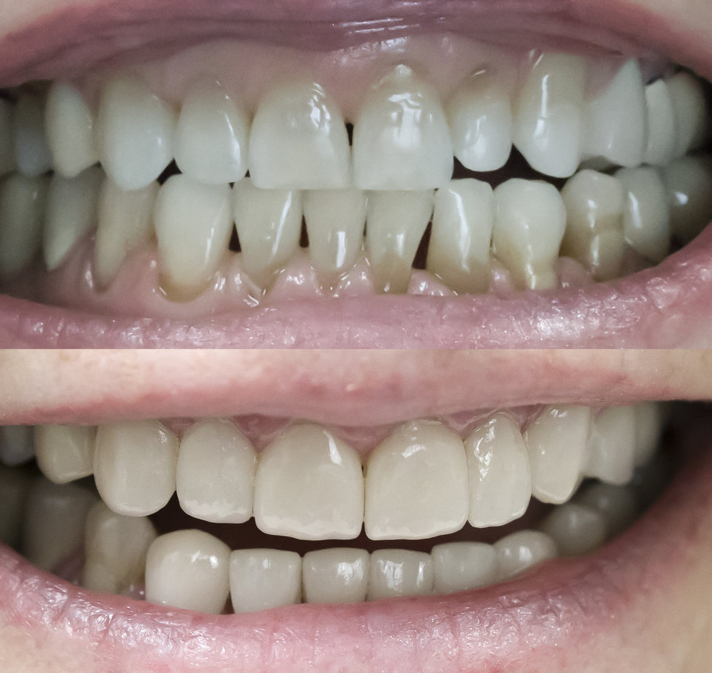 Minimally Invasive Veneers