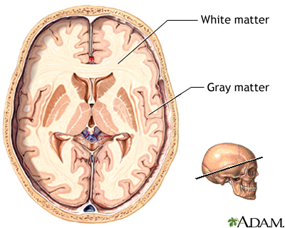 The brain: white matter and grey/gray matter. Source:  A.D.A.M Education