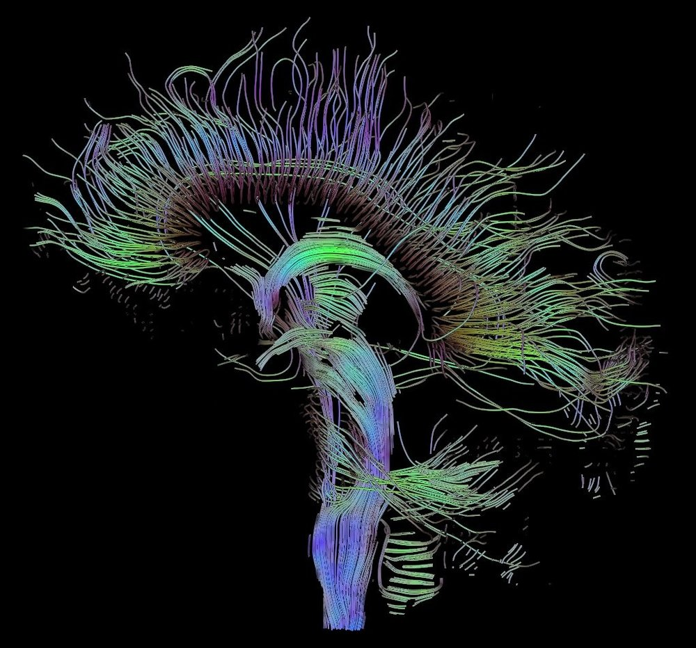 An image of neural pathways in the brain, taken using Diffusion Tensor Imaging (DTI). Source: Thomas Schultz