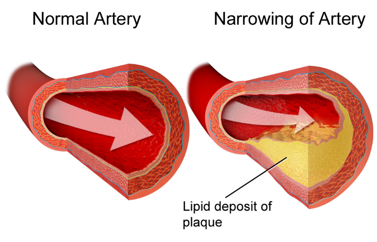 Normal artery and n arrowed artery