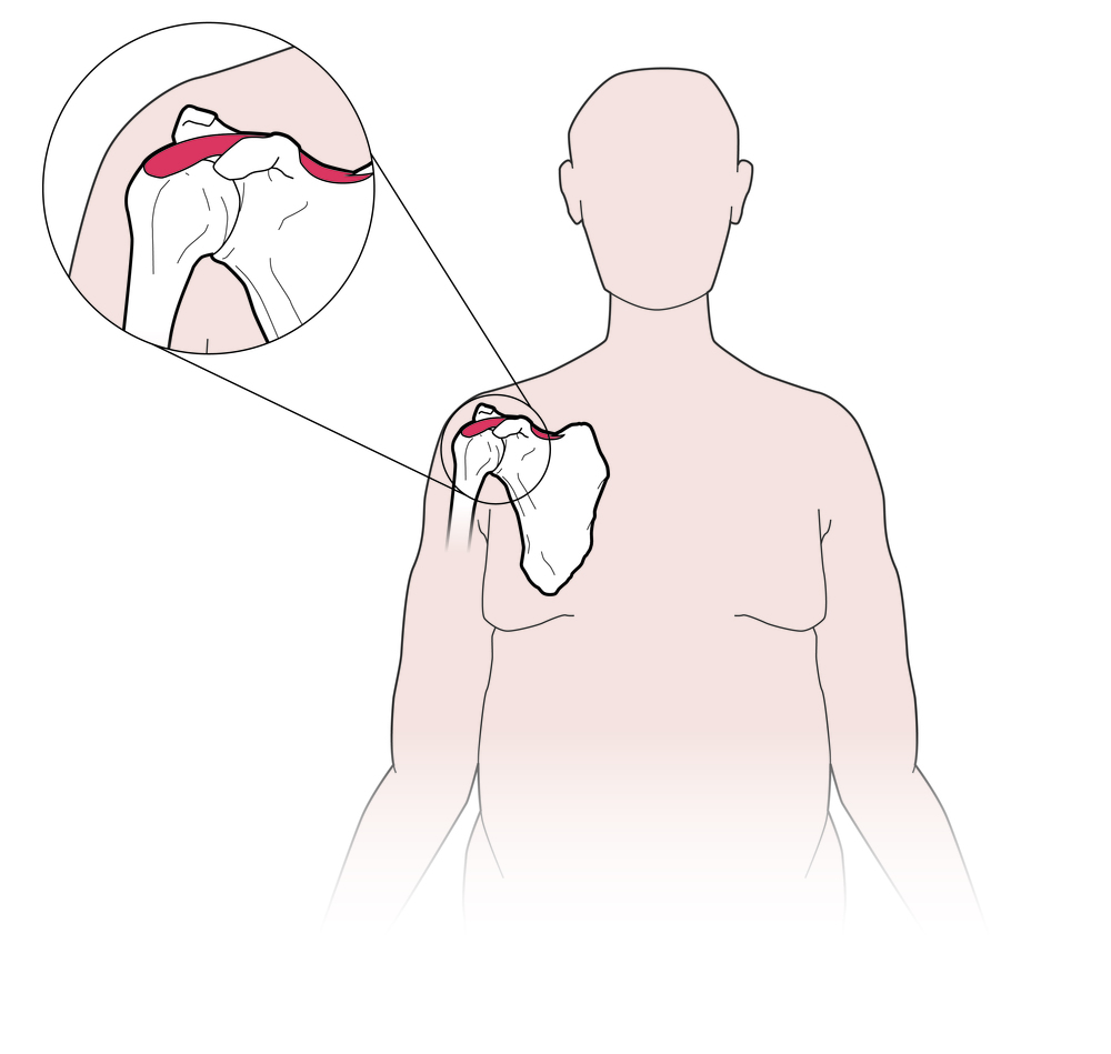 Normal shoulder position