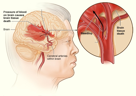 Picture of hemorrhagic stroke. Source: National Heart, Lung and Blood Institute, National Institutes of Health