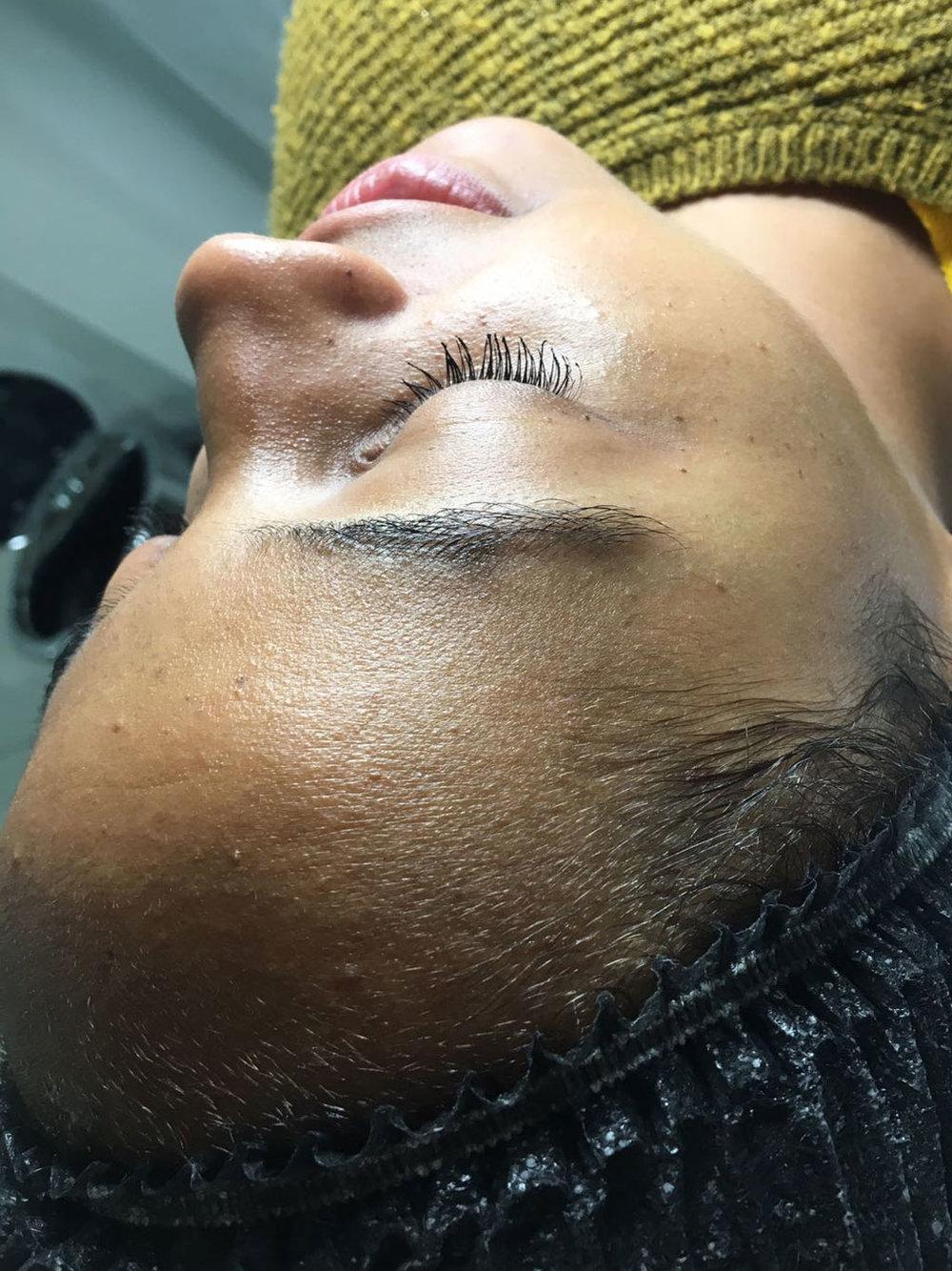 best-facial-hair-removal-bristol.jpg