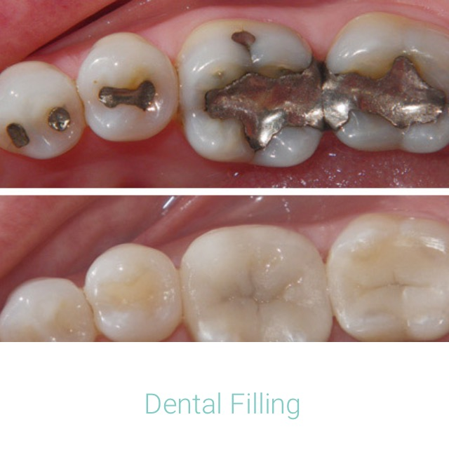 Dental Filling.jpg
