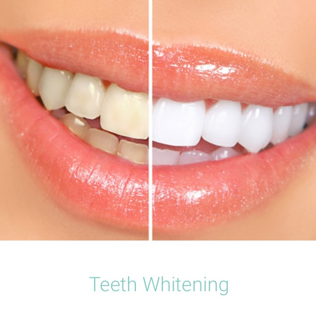 Dental Whitening.jpg