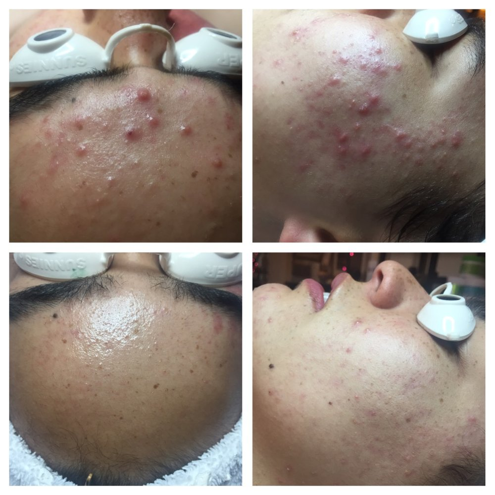 Results obtained from a series of 8 Level 2 Peels and dietary adjustments.