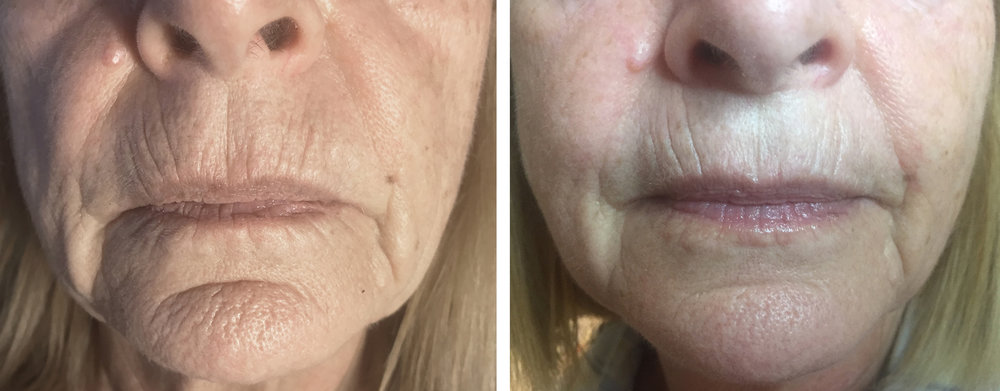 Results obtained with 2 Collagen Induction Treatments