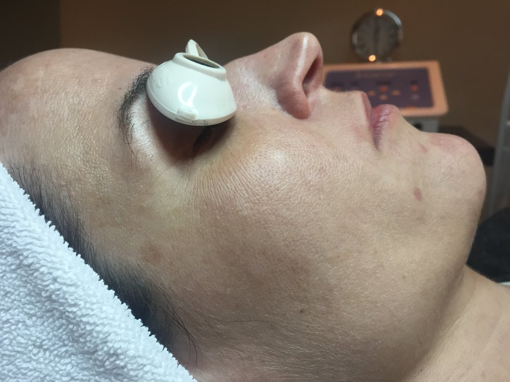 holistic facial rejuvenation