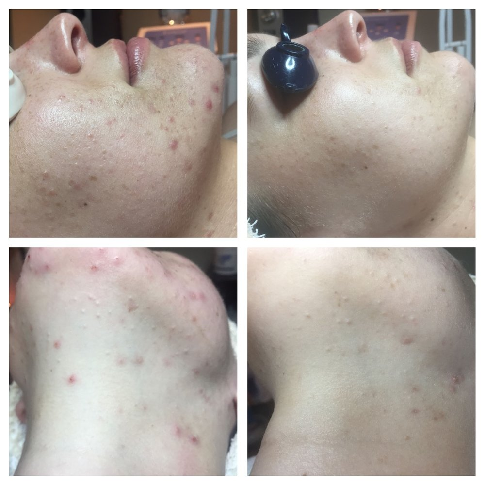 Results obtained with 2 Level 2 Peels, a new skincare regime, and slight dietary adjustments