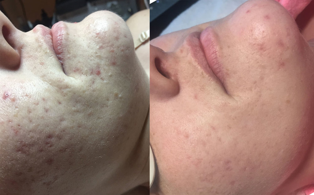 silk peel treatment for acne and acne scarring