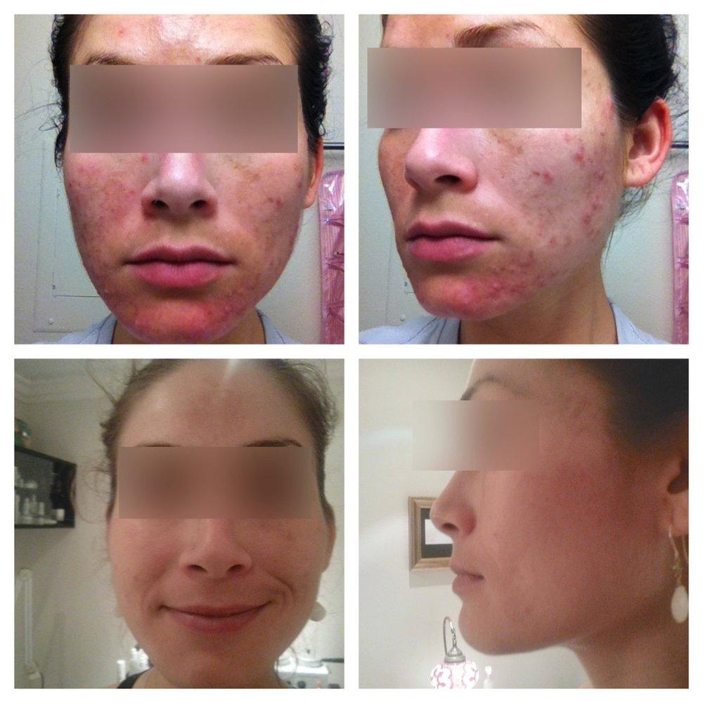 acne and pigmentation.jpeg