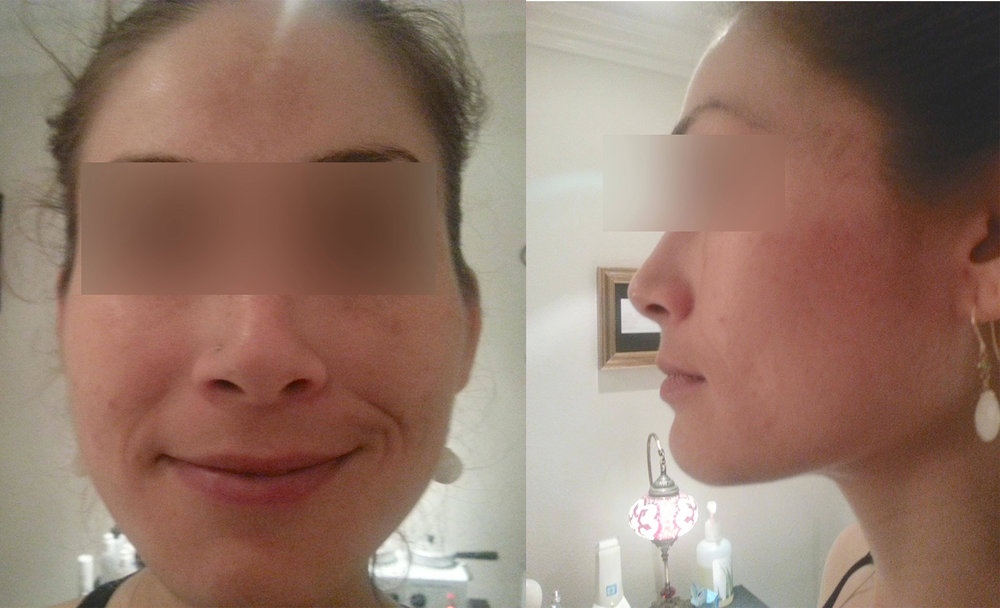 acne&pigmentation after.jpg