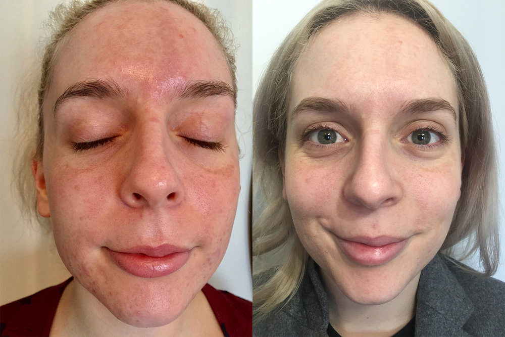 Results obtained from a series of 3 Silk Peel Dermal Infusions and 3 Level 2 Peels