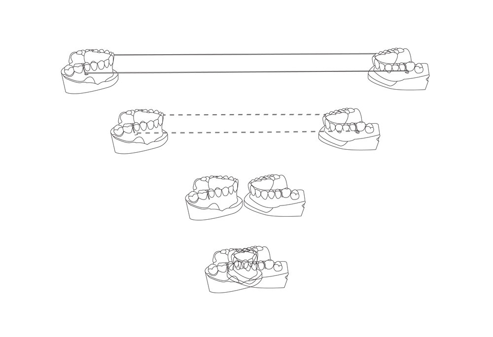Retainer Illustration-04.jpg