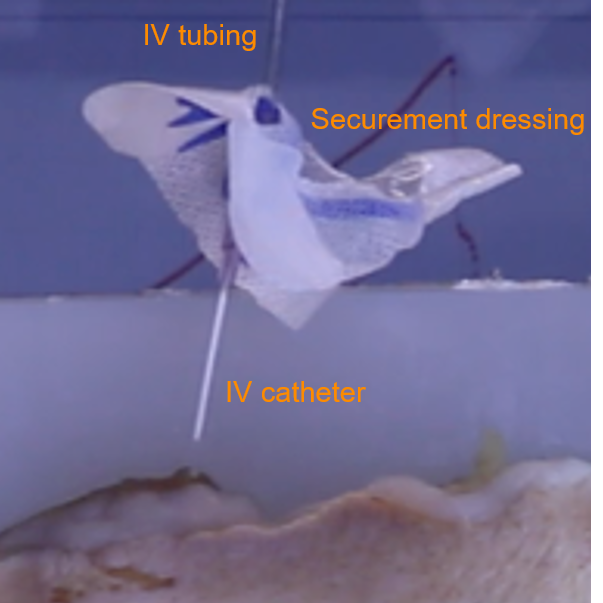 Slow-motion image of IV dislodgement in a lab setting