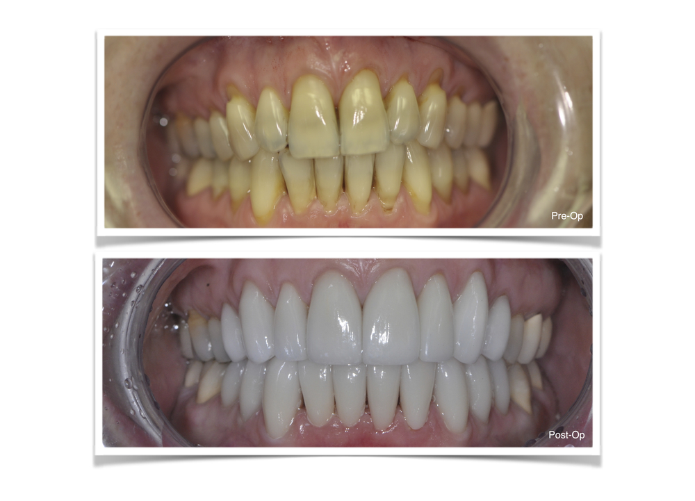 Upper and Lower Porcelain Veneers