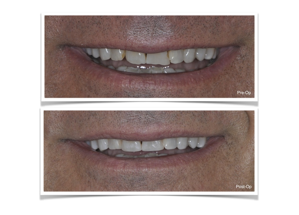 Bonding of Anterior Teeth