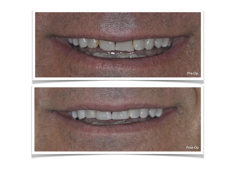 Bonding of Anterior Teeth
