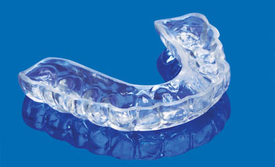 A photo of a typical bite guard. Source: http://www.huffingtonpost.com/patricia-yarberry-allen/dental-health-and-menopau_b_250176.html