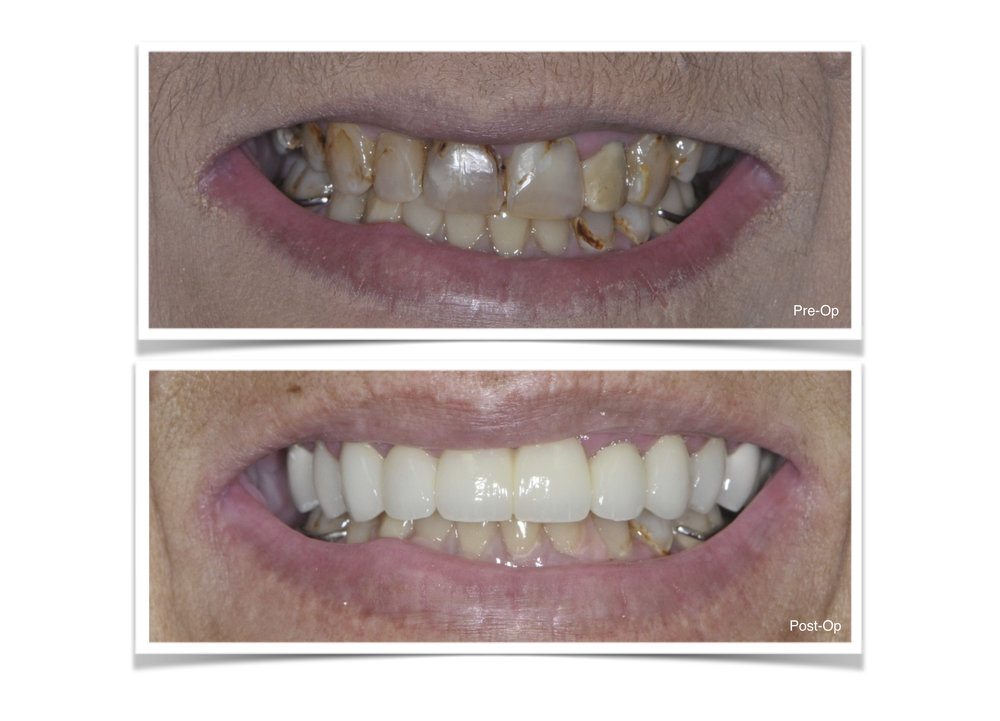 Complete Restoration of the Top Teeth