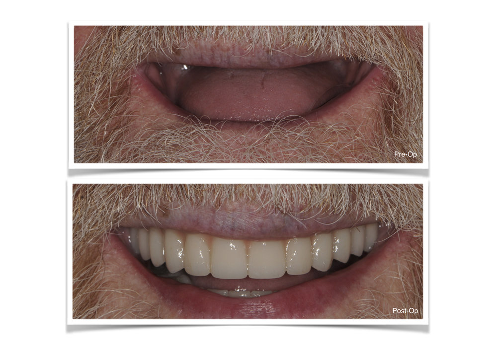 Full Mouth Reconstruction with Hybrid Prosthesis