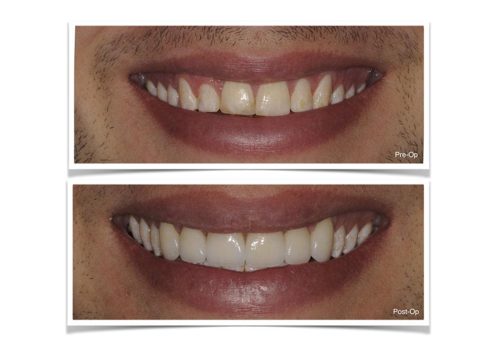 Veneers Teeth 6-11