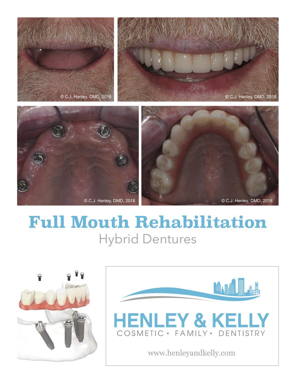 Hybrid Dentures jpeg.jpg
