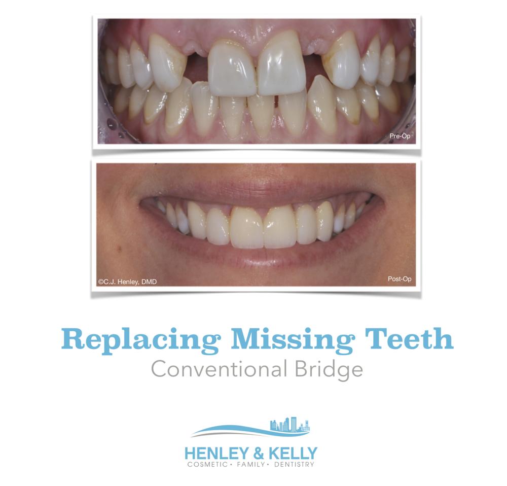Anterior Dental Bridge