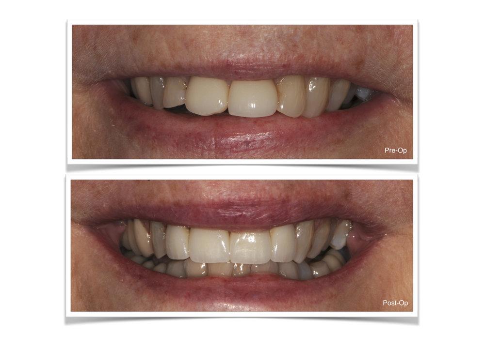 All Ceramic Crowns on teeth #7-10